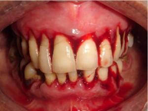 gambar gusi berdarah dari www.sciencedirect.com
